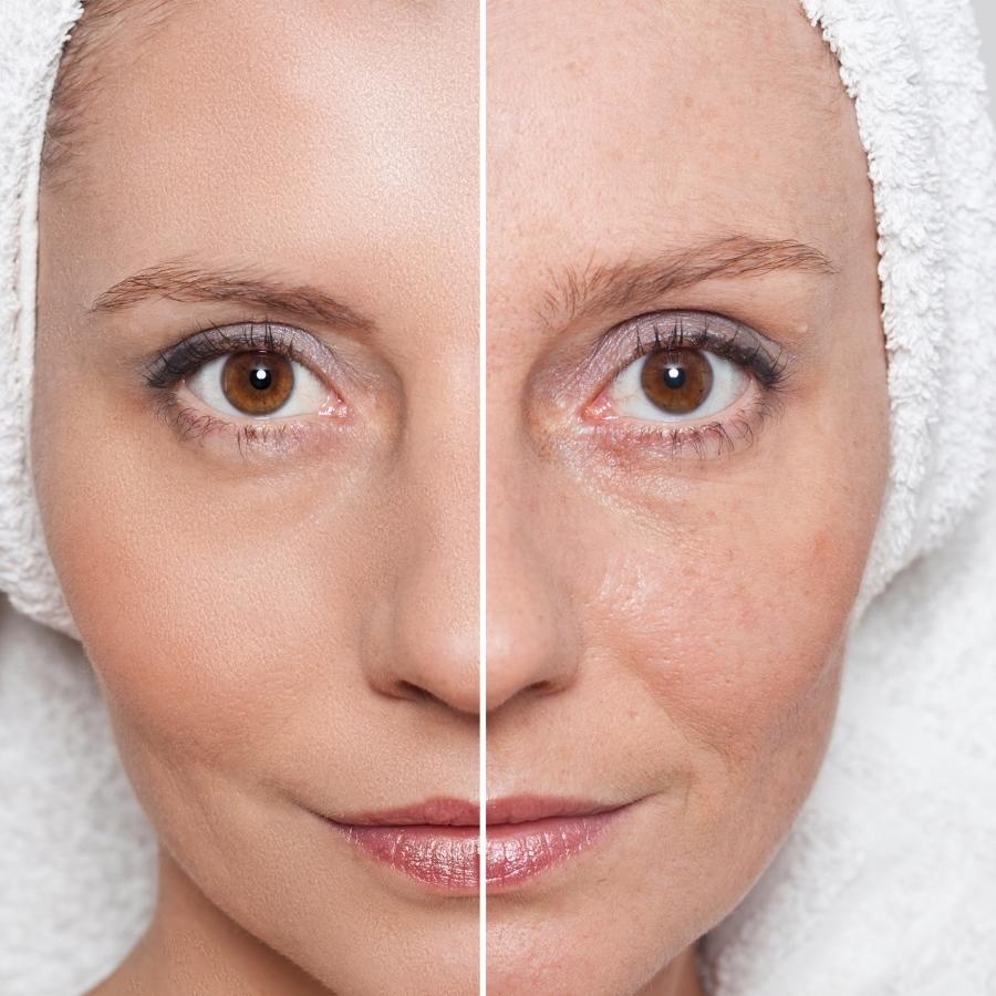 "alt=""photorejuvenation, skin tightening"">"