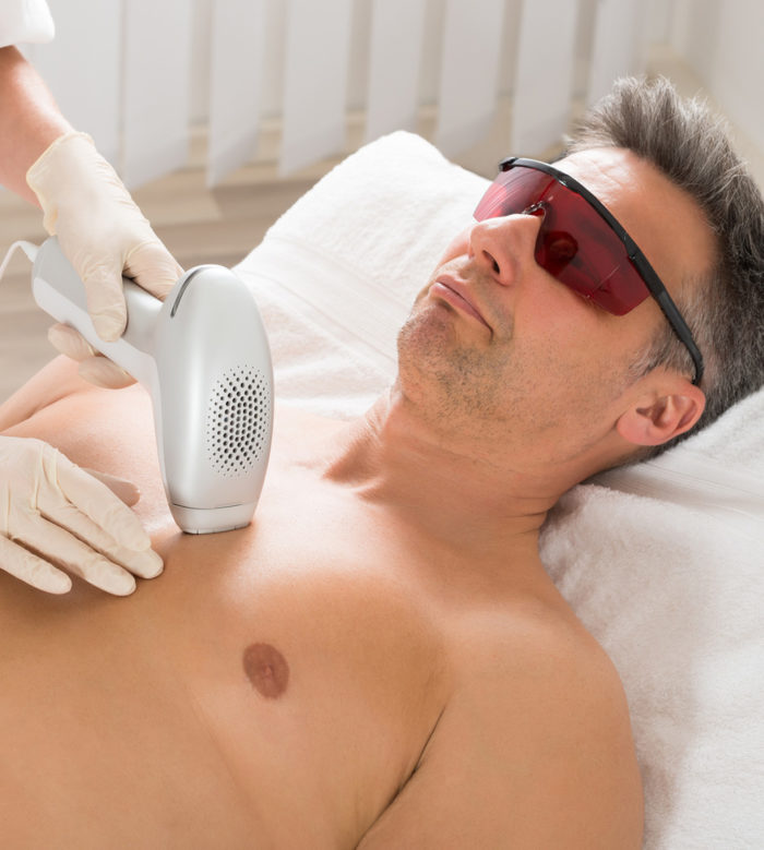 laser-hair-removal-mans-chest