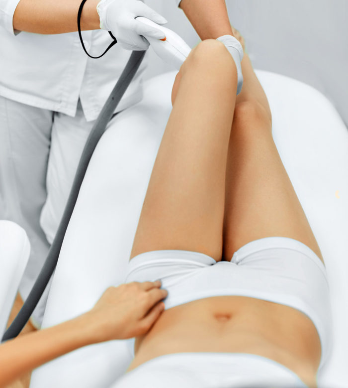 laser-hair-removal-womans-legs