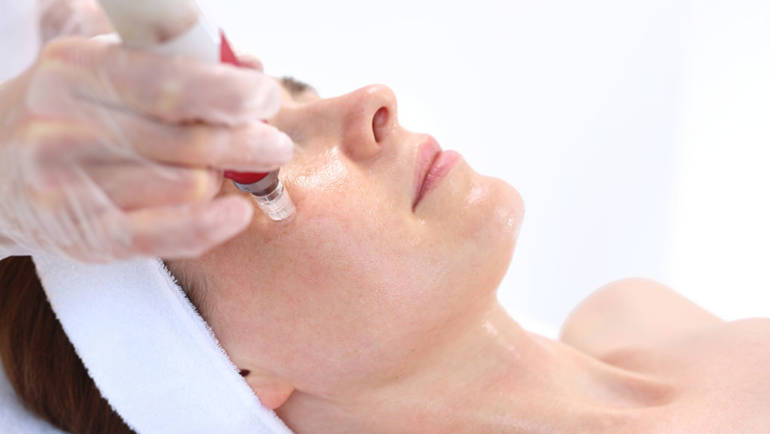 Microneedling – The Art of Skin Renovation
