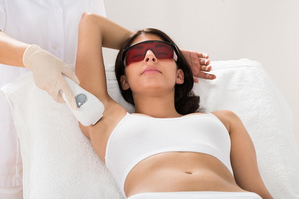 underarm laser hair removal treatment